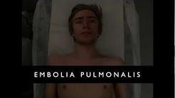 Embolia pulmonalis