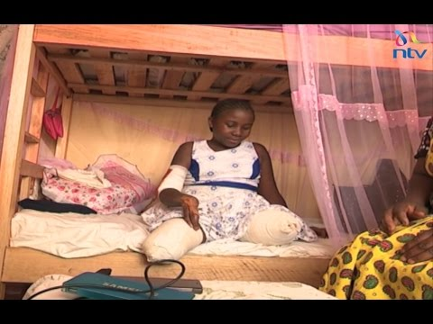 Sharon who lost limbs in train accident to get artificial limbs as RVR remains silent