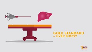 Biopsy: the gold standard for NASH Diagnosis