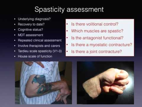 The management of spastic disorders in the upper limb Wrightington Hand Diploma Revsion Course Janua
