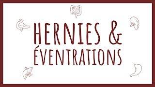 Sémiologie Chirurgicale - Hernies & éventrations