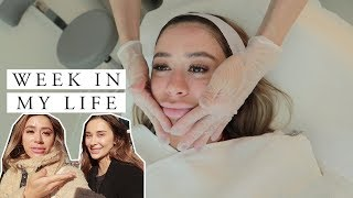 WEEK IN MY LIFE | bumping into famous YouTuber and multiple deep skin treatments