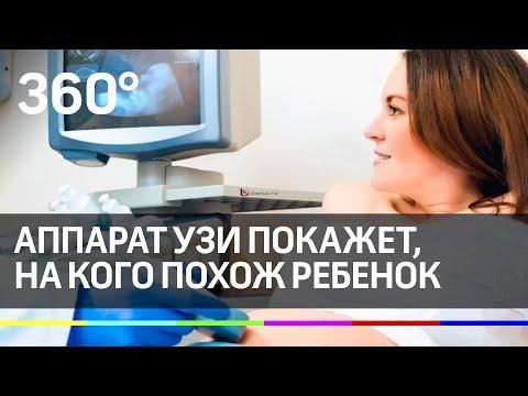 4D-малыш! Современный аппарат УЗИ покажет, на кого похож ребенок.