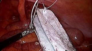 Laparoscopic Surgery for Para Umbilical Hernia