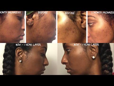 Facial white spot
