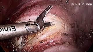 Total Laparoscopic Hysterectomy with Bilateral Salpingo Oophorectomy