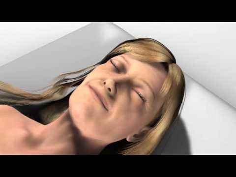 3-D animatie: MACS-lift