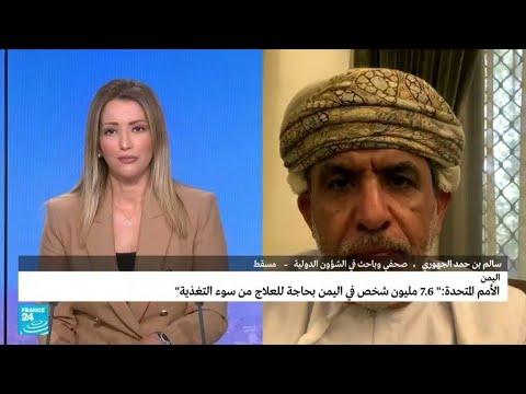 ...الأمم المتحدة: -7,6 مليون شخص في اليمن بحاجة للعلاج من س  - 14:57-2021 / 9 / 24