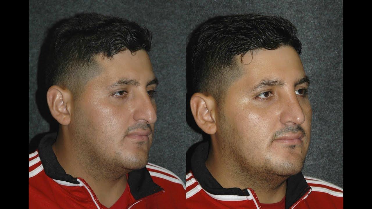hispanic rhinoplasty on man latino ethnic nose job reviews hispanic rhinoplasty on man latino ethnic nose job reviews