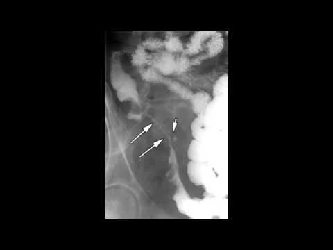 Signet Ring, String Sign,  Granulomatosis with Polyangiitis (Wegener