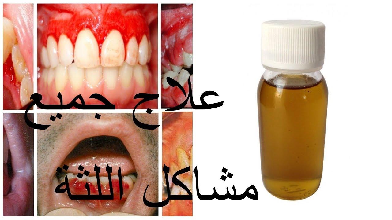 غسول طبيعي للعلاج جميع مشاكل اللثة سيلان الدم تعفن التهاب اللثة و الرائحة الكريهة في اسبوع Youtube