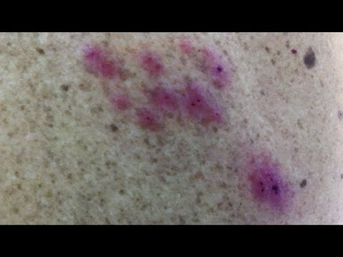 Опоясывающий герпес - лечение, симптомы, причины