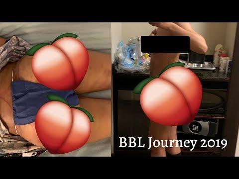 bbl-journey- -spectrum-aesthetics-miami- -dr.-chang