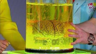 видео Легкое сотрясение мозга: признаки, симптомы, лечение
