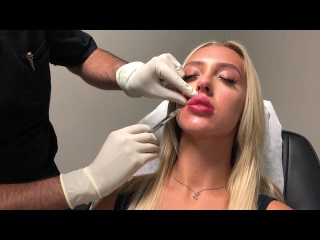 Love Your Lips - Lip Enhancement in Action