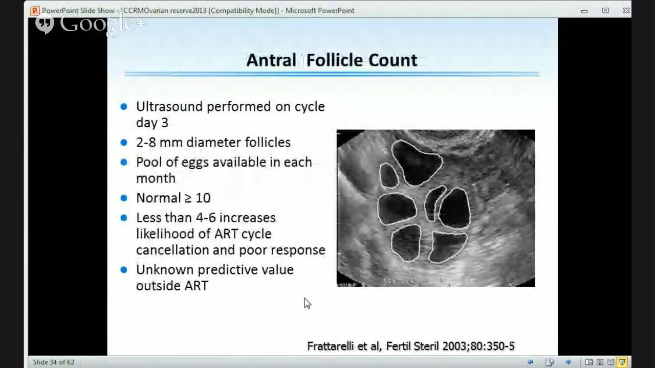 Ovulation induction revisited youtube ovulation induction revisited fandeluxe Image collections