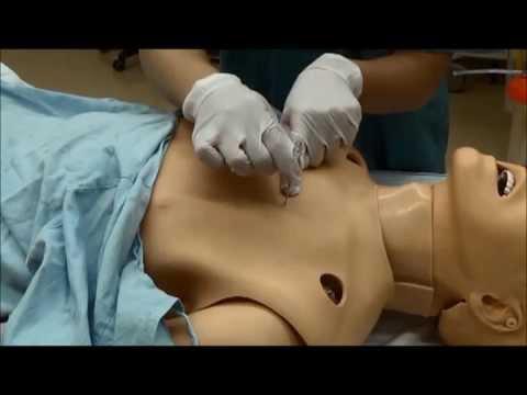 Treating a tension pneumothorax