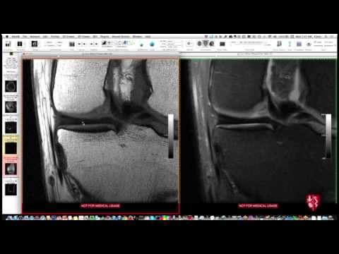 Knee mri anatomy review youtube knee mri anatomy review ccuart Images