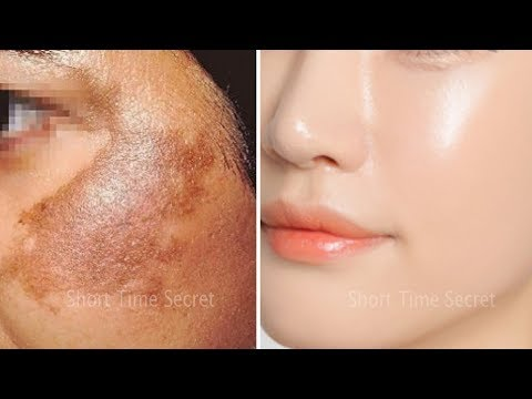In 2 DAYS-Remove DARK SPOTS | Apply Treatment on Your DARK SPOTS and See the Magic