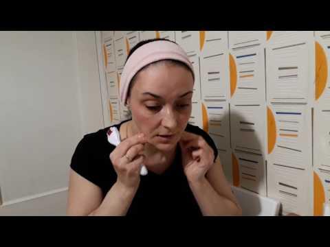 Мезотерапия в домашних условиях: как пользоваться мезороллером