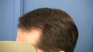 Hair Transplant by Dr Wong - 3579 Grafts in 1 Session