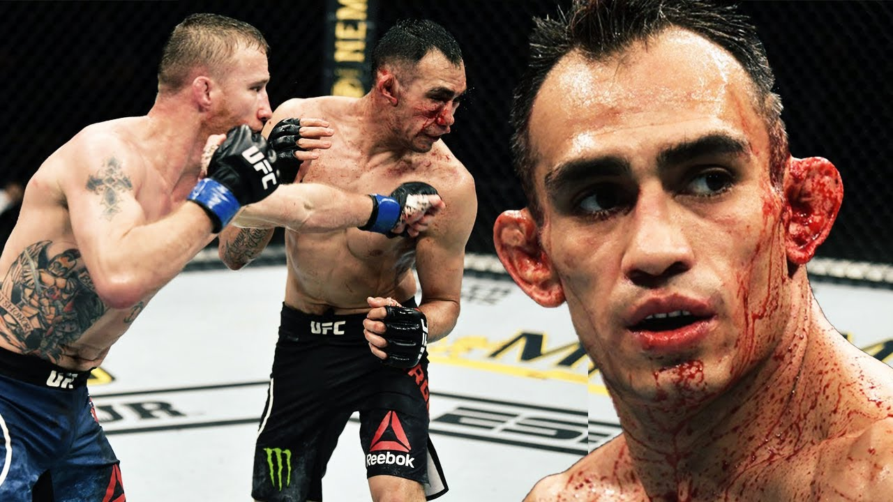 Tony Ferguson | All Losses in the UFC