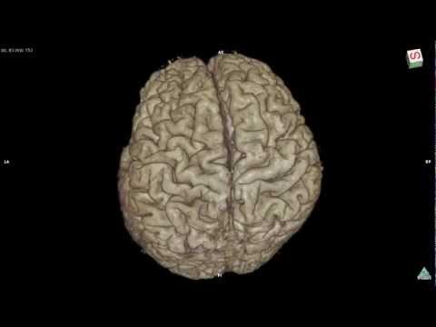 Variation of brain cortex 3D MRI sample B,g]o