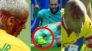 The Ugly Side of Football  Horror Injuries  Tackles  Fouls  HD