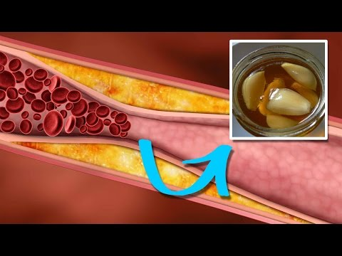 How to Lower Triglycerides Quickly and Naturally