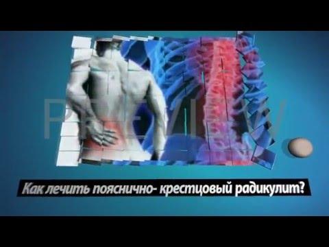 Пояснично-крестцовый радикулит: симптомы, лечение