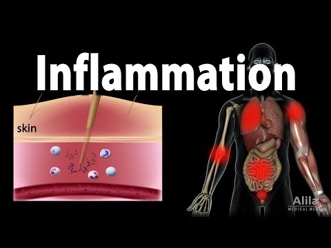4 Telltale Marks of High Inflammation to look at