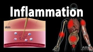 Process of acute inflammation. pro-inflammatory and anti-inflammatory factors. this video is available for instant download licensing here https://www.alilam...