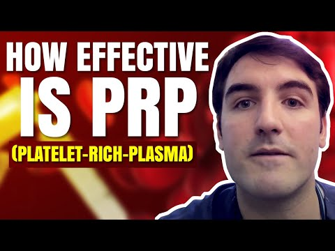 How effective is PRP (platelet-rich-plasma) and Stem Cell Therapy for osteoarthritis