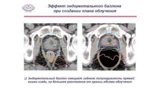Лучевая терапия предстательной железы Усычкин С. В.
