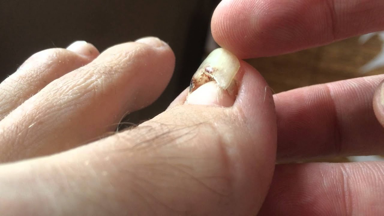 Detached toenail about to fall off - YouTube