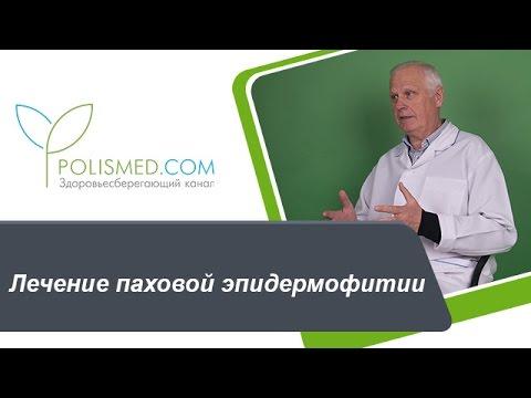 Лечение паховой эпидермофитии: противогрибковые средства, антимикотики. Народная медицина