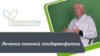 Лечение паховой эпидермофитии: противогрибковые средства, антимикотики. Народная медицина(, 2016-12-18T09:34:52.000Z)