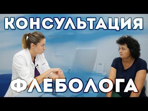 Консультация врача флеболога перед лечением варикоза