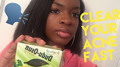 hqdefault - Dudu Osun Black Soap Good Acne