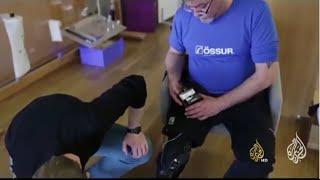تقنية تتيح للمريض التحكم بالأرجل الصناعية بواسطة الدماغ