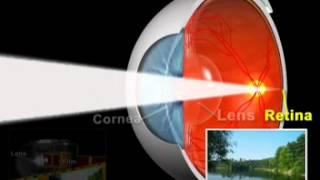 How cataract cause blurriness & Blindness