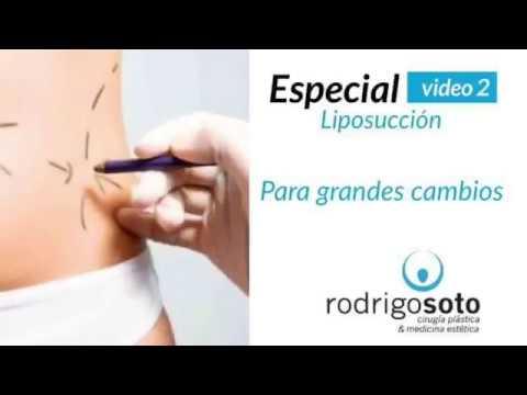 Especial Liposucción para grandes cambios - Dr. Rodrigo Soto