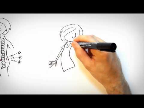 Neuralgie - Was Sind Nervenschmerzen (Neuralgien) Und Sie Sollte Man Damit Umgehen?