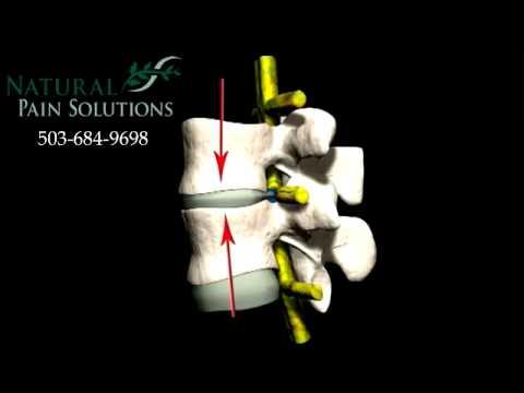 Spinal Compression Damage Explained