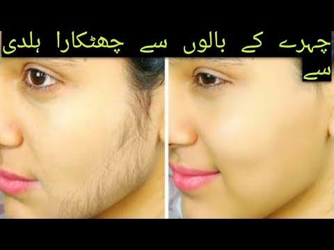 hirsutism treatment for women and men in urdu