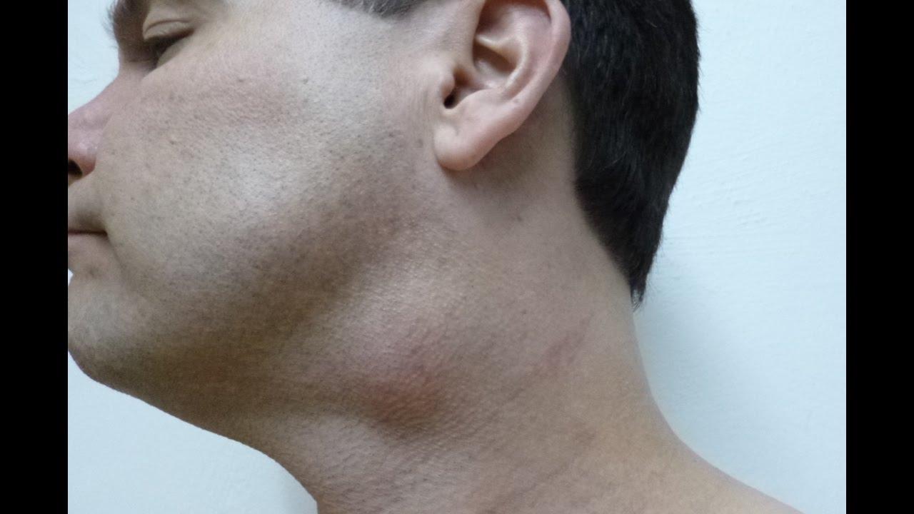 Cirugia de lipoma en cuello