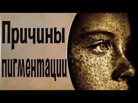 Пигментация на теле, родинки, веснушки. Причина появления пигментных пятен. Общение с Духами.