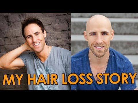 My Hair Loss Story  Going Bald Early Advice