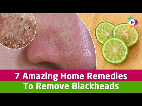 7 Amazing Home Remedies To Remove Blackheads - Health Tips