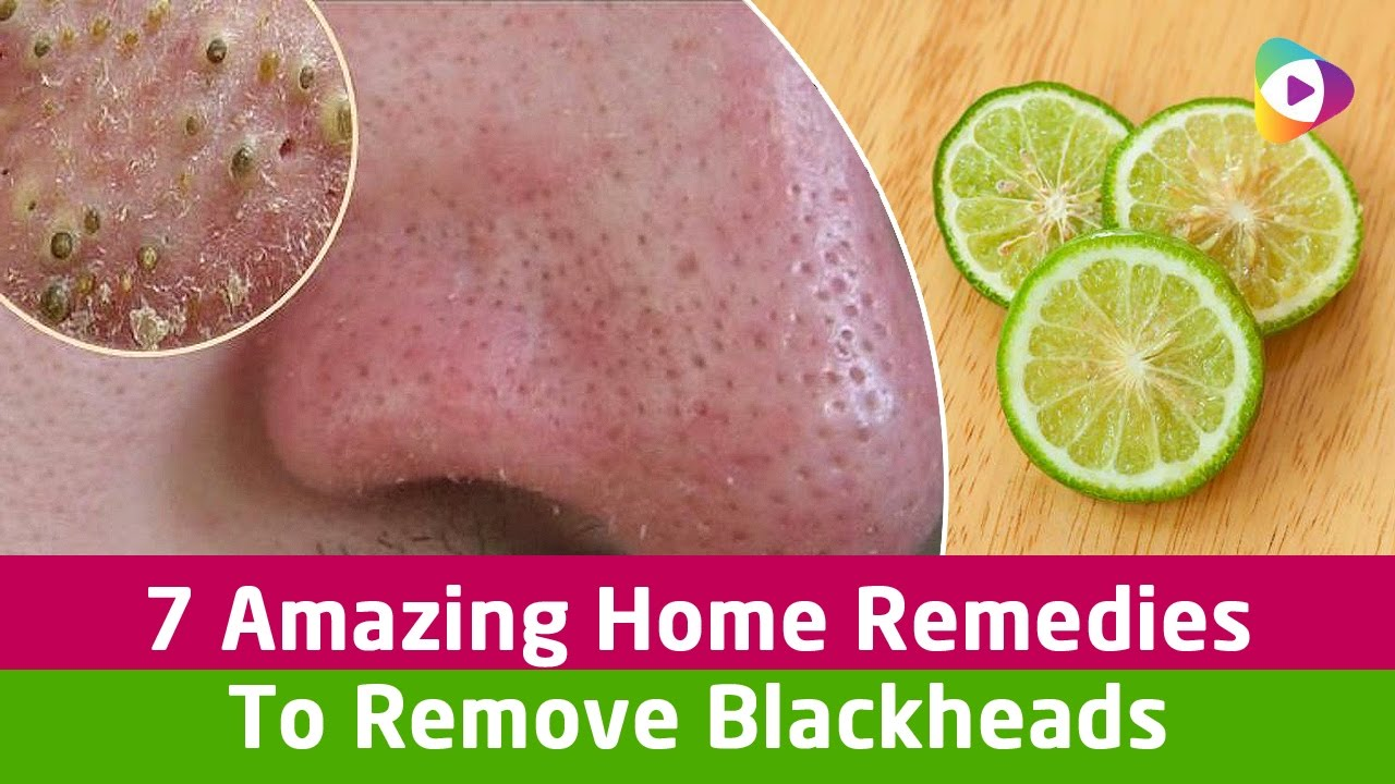 7 Amazing Home Remedies To Remove Blackheads Health Tips Youtube